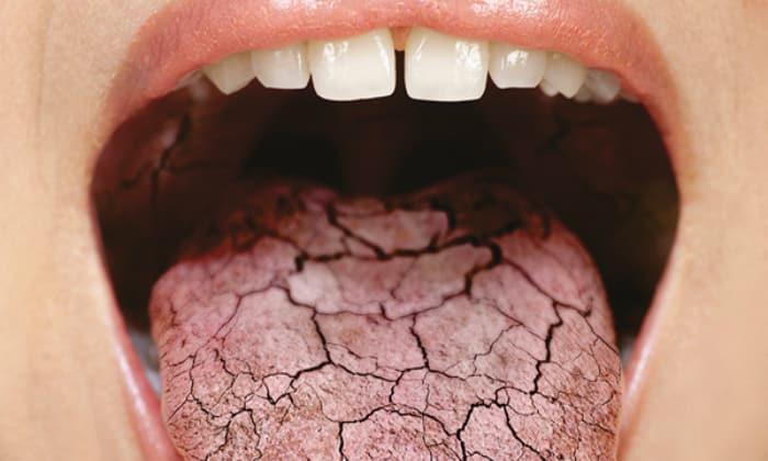 Когда во рту наблюдается сухость, это говорит о том, что количество выделяемой слюны уменьшилось, а значит, снизилось и очищение ротовой полости, что и привело к появлению отталкивающего запаха