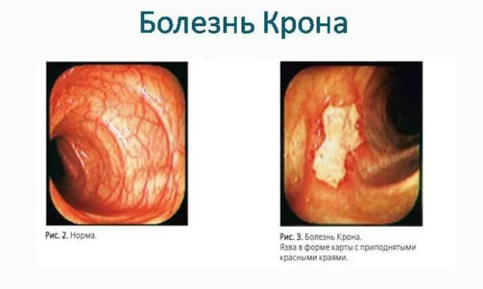 Часто причины диареи у взрослых кроются в болезни Крона
