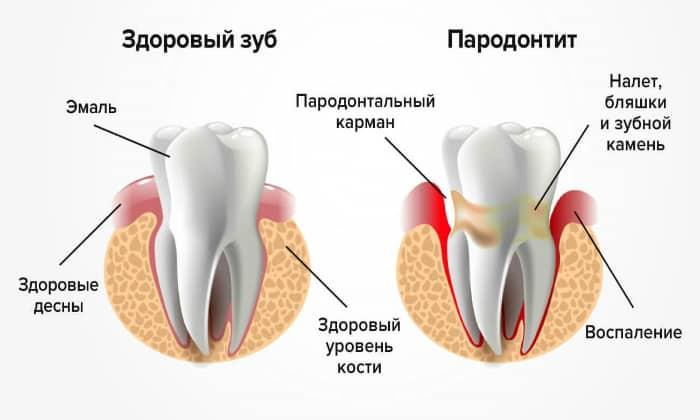Довольно часто болезни зубов и десен становятся причиной неприятного привкуса во рту