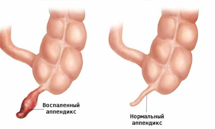 Боль внизу живота справа может быть следствием аппендицита