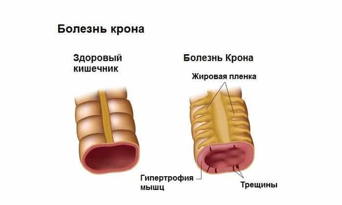 При развитии болезни Крона будут появляться боли в кишечнике, понос, снижаться аппетит
