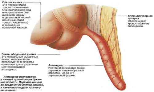 Аппендикс - это отросток слепой кишки, по форме напоминающий червя. К причинам развития аппендицита можно отнести влияние большого количества бактерий