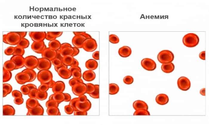 Особенно должно насторожить то, когда возник такой стул у взрослого или у ребенка, при этом постоянно при проведении анализа крови выявляется анемия