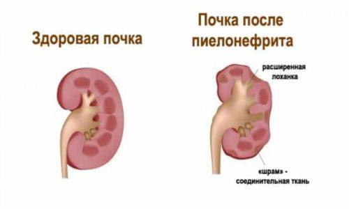Нефрит - состояние, при котором происходит воспаление в почках