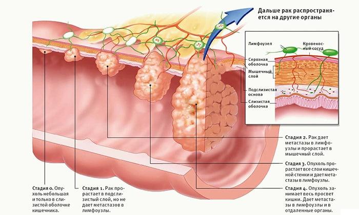 Боли, развивающиеся во время акта дефекации, могут свидетельствовать об опухоли прямой кишки