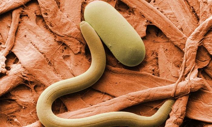 Когда болит в районе пупка, возможны это наличие паразитов в организме