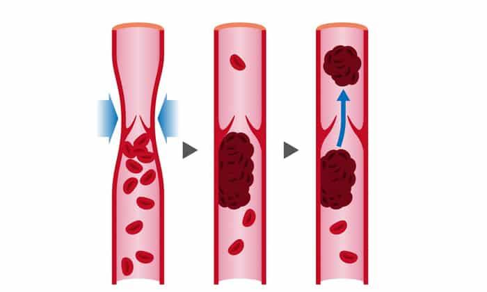 По мере того, как опухоль будет расти может начаться закупорка артерий, от чего развивается инфаркт селезенки