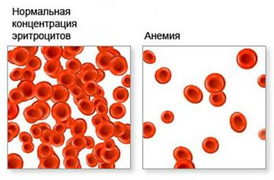 При длительном игнорировании симптоматики болезнь может стать причиной анемии