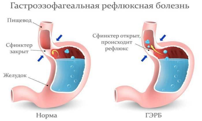 Желудочный кашель может быть признаком гастроэзофагеального рефлюкса