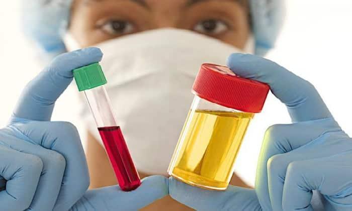 Необходимыми процедурами являются общий анализ мочи и крови
