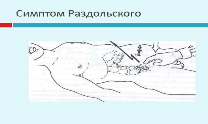 Симптом Раздольского выражен в виде резких и острых болезненных ощущений при перкуссии над зоной, где располагается поджелудочная железа