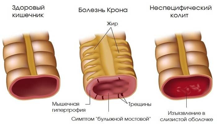 Одна из причин непереносимости лактозы, болезнь Крона - это воспалительное заболевание кишечника