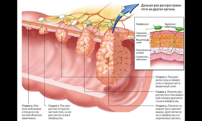 При подозрение на злокачественную опухоль необходимо провести данную процедуру