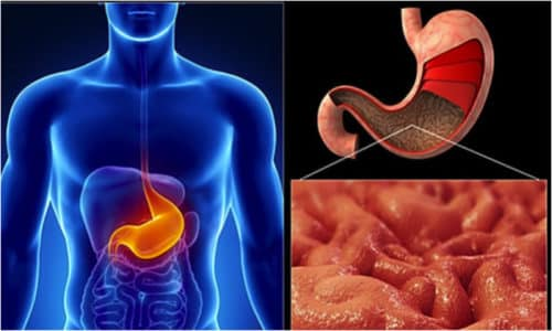 Нулевая кислотность желудка - тяжелое заболевание, которое может вызывать серьезные осложнения
