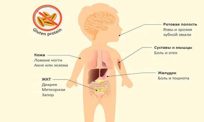 Целиакия у детей может протекать с различными симптомами. В ходе целиакии наблюдаются периоды обострений