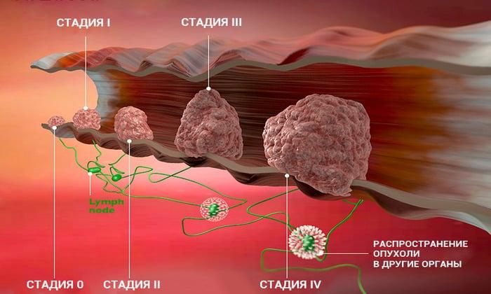 Назначение ирригоскопии возможно и при подозрениях на рак кишечника