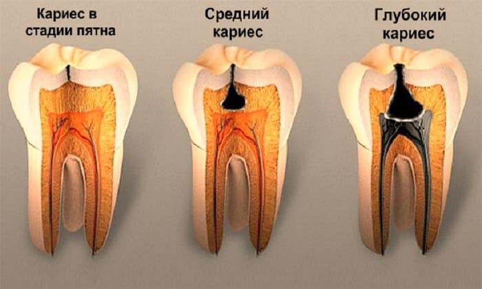 Гематогенный путь инфицирования желчного пузыря происходит через кариес зубов