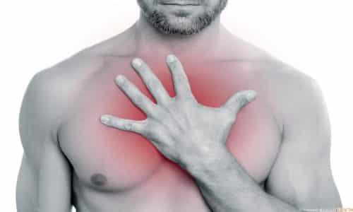Сильная боль за грудиной может быть ошибочно принята за приступ стенокардии