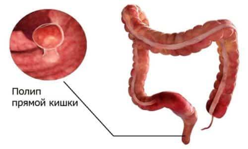 Ирригоскопия кишечника позволяет определить ряд патологий, например, полип