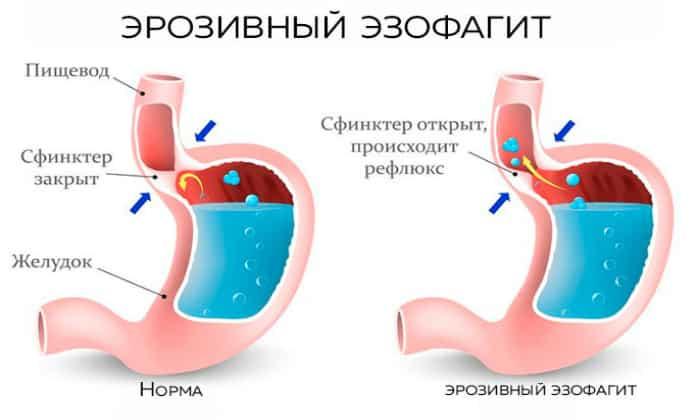 Аэрофагия может являться одним из симптомов эрозивного эзофагита