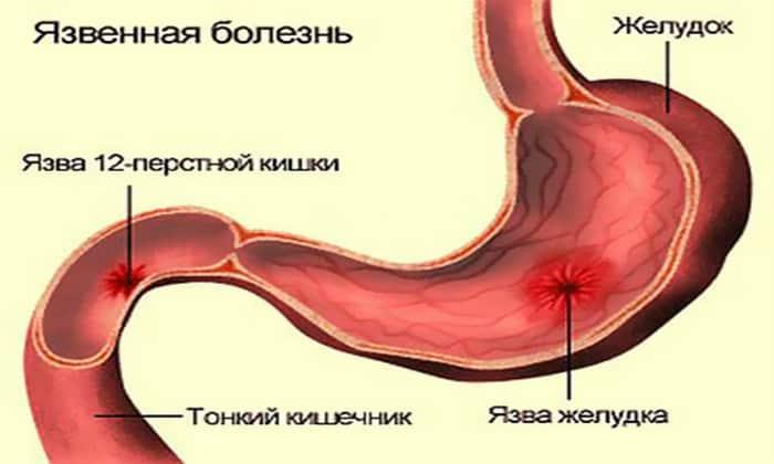 Аэрофагия может являться одним из симптомов язвы желудочно-кишечного тракта или двенадцатиперстной кишки