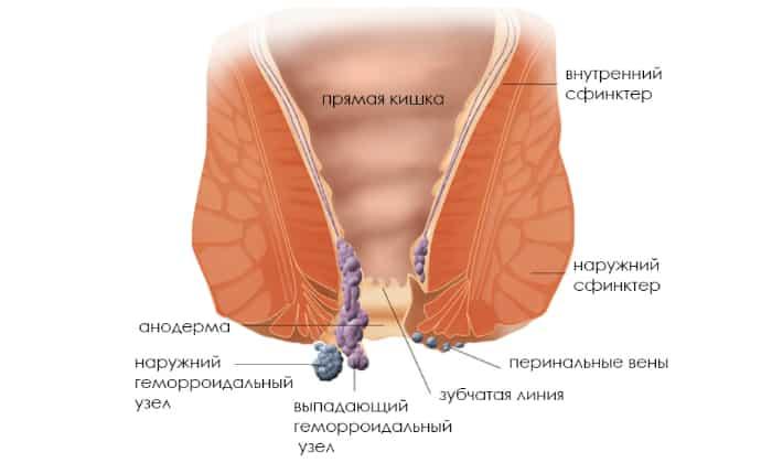 К распространенным болезням кишечника специалисты относят геморрой