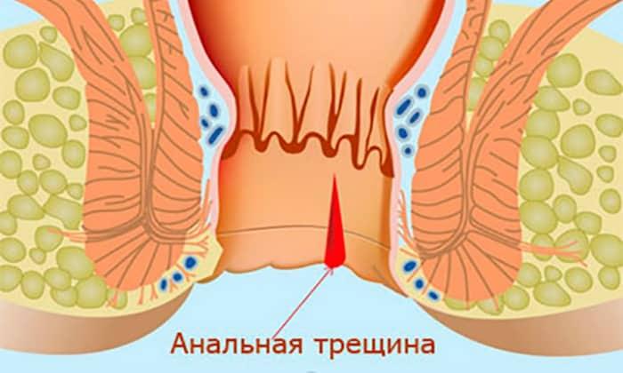Трещины в области ануса противопоказание к применению свечей
