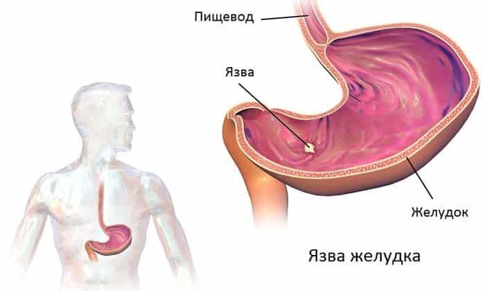 Язва желудка может локализоваться в любой области, так что место болей может быть и справа от пупка