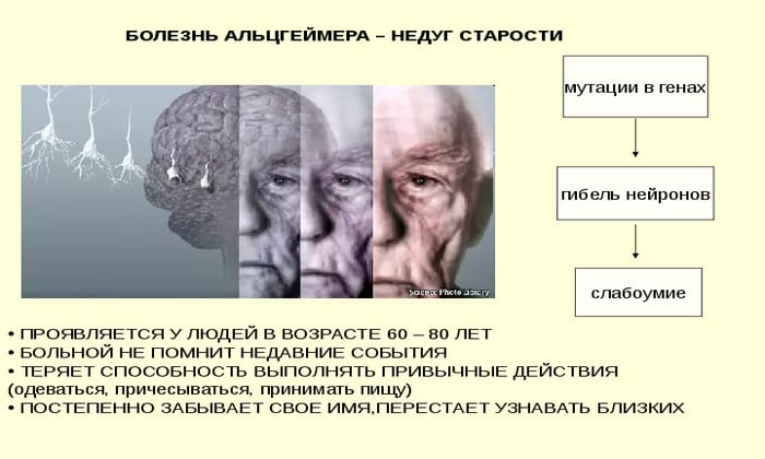 При болезни Альцгеймера может ощущаться сухость во рту