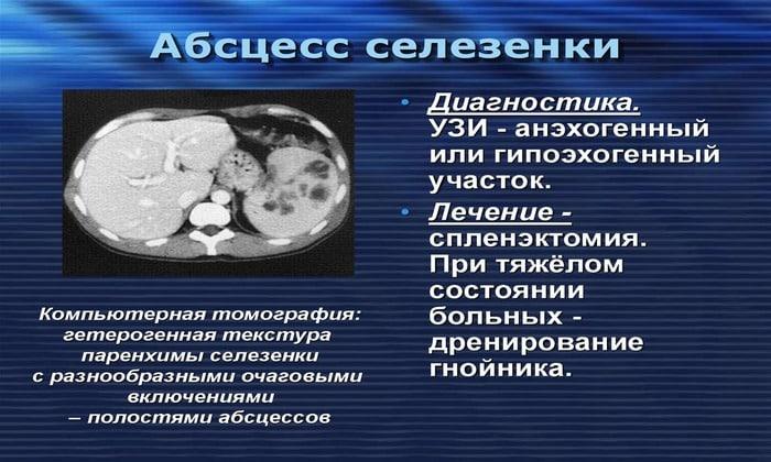 Абсцесс - возникновение гнойного мешка в селезенке. Появиться он может из-за перенесенных ранее инфекций внутренних органов