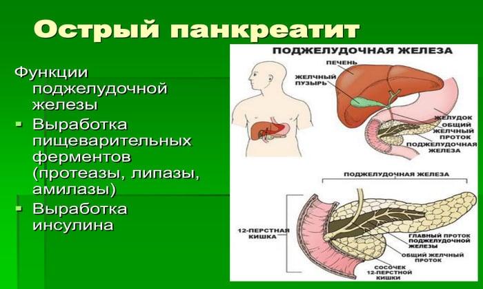 Об остром воспалении речь идет тогда, когда панкреатический синдром возникает в первые полгода с начала развития заболевания