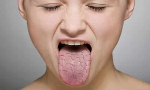 Сухость во рту носит еще одно название: ксеростомия, она может зачастую проявляться в ночное время