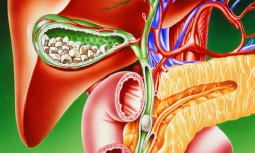 Причины панкреатита (болезни поджелудочной железы) может быть наличие желчнокаменной болезни