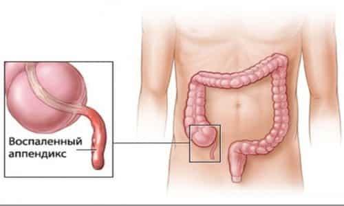 При аппендиксе боль появляется с левой стороны от пупка, но потом боль переходит и на правую сторону