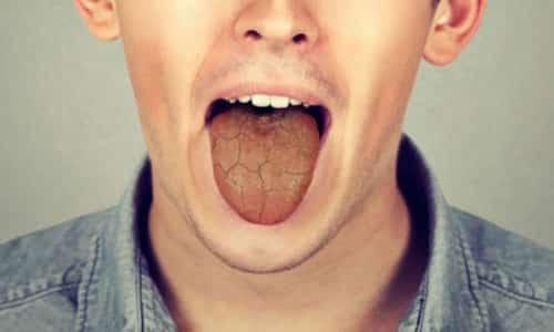 Сухость и горечь во рту утром могут иметь безобидный характер, они проходят через определенное время, не возвращаются регулярно