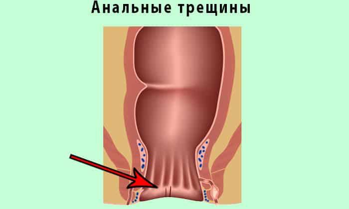 При болезни Крона у человека появляются анальные трещины