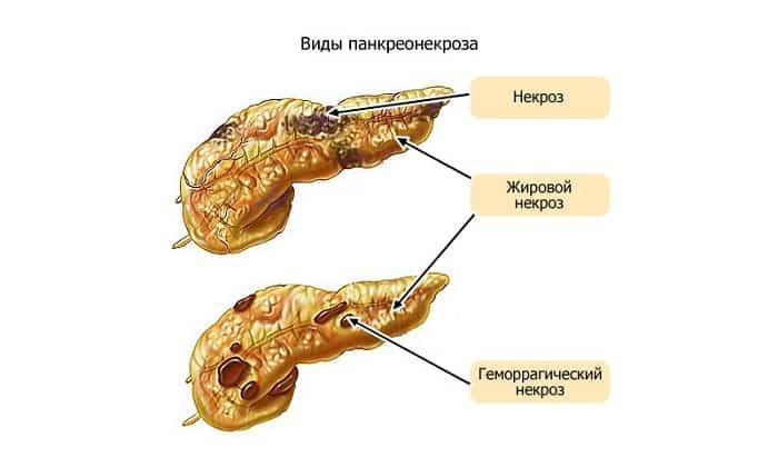 Перепанкреатонекроз это отечная форма болезни