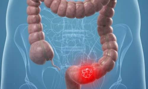 Если не обращается за помощью во время то возможно развитие осложнений в виде непроходимости кишечника