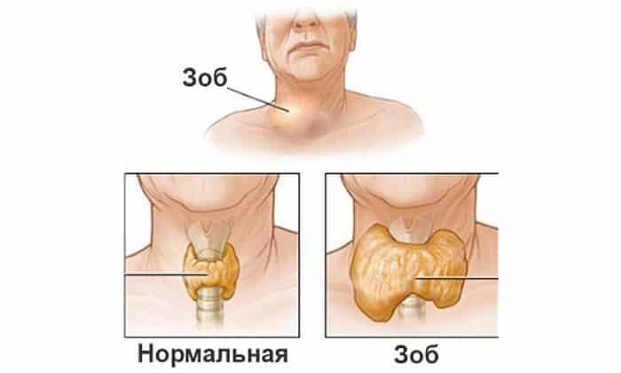 Патологическое увеличение щитовидной железы (диффузный зоб) так же может быть причиной жжения в горле