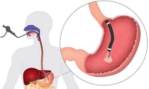 Диагностика гастрита- это осмотр слизистой оболочки желудка с помощью зонда. Посредством зонда берется кусочек слизистой на анализ
