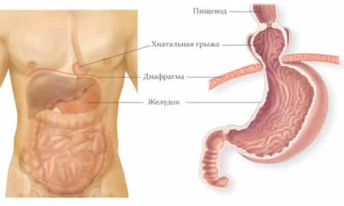 Аксиальная грыжа пищевода - это дефект, случившийся в диафрагме, который сказывается на пищеводе и желудке