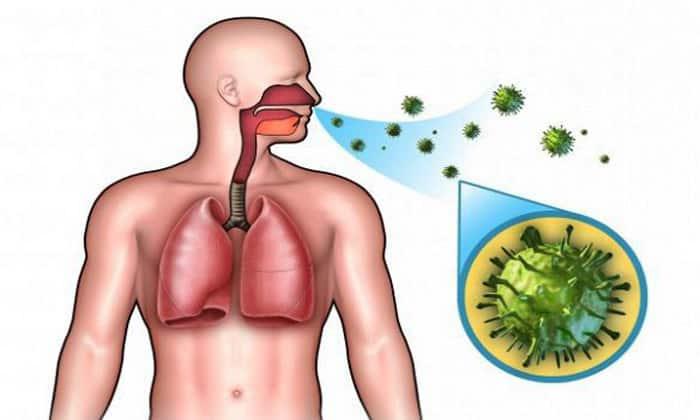Слабый иммунитет может стать причиной аппендицита