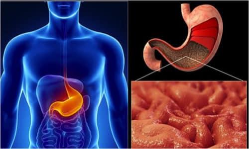 Анацидная форма гастрита характеризуется пониженной кислотностью или полным отсутствием желудочного сока