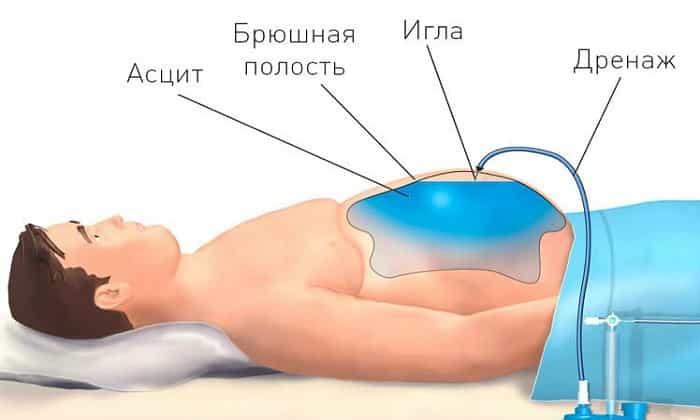 Для лечение асцита пациенту проводят лапароцентез, цель которого - откачивание жидкости после прокалывания живота