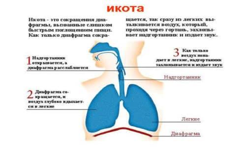 Икота - это непроизвольное сокращение диафрагмы. Спазм происходит внезапно с нарушением дыхательного процесса, полностью останавливая вздох на короткое время