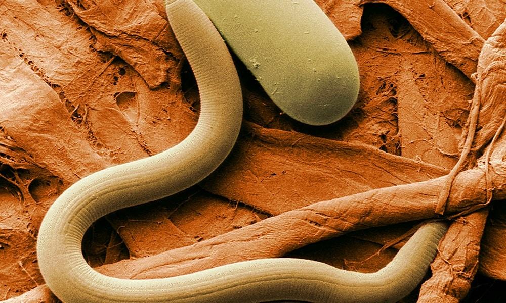 Паразитарные инвазии могут привести к развитию панкреатита