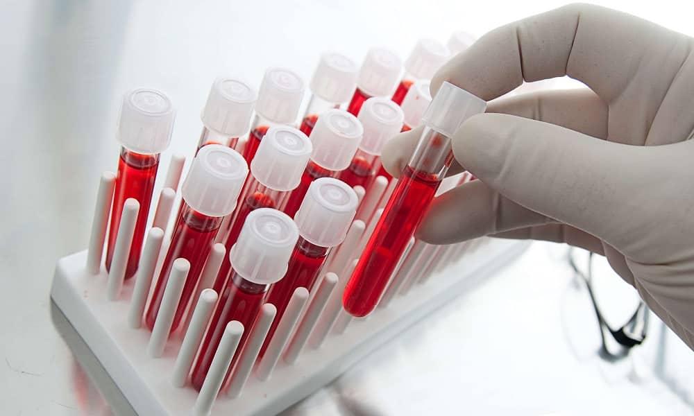 При подозрении на диабет необходимо сдать кровь на определение уровня глюкозы