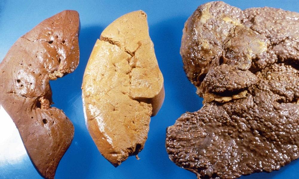 При нехватке гормона глюкагона наблюдается цирроз печени