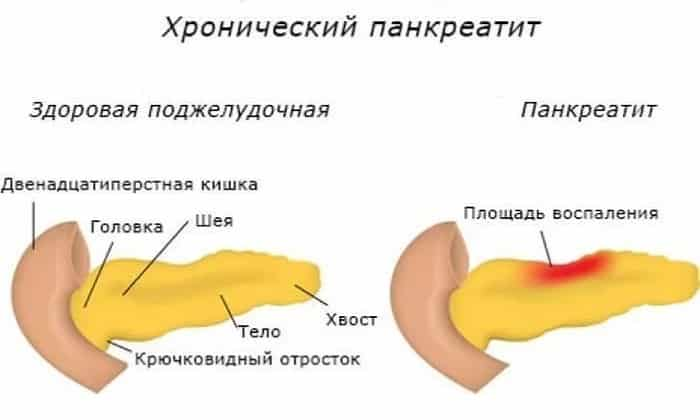 Лекарство применяется при хронической форме панкреатита