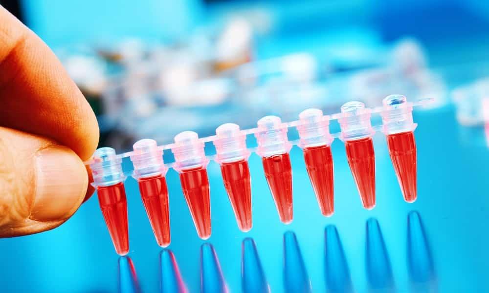 При биохимическом исследовании крови наличие заболевания подтверждается повышенным уровнем ферментов амилазы
